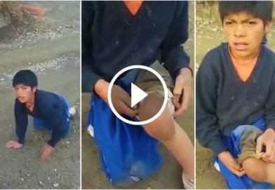 """PARCOY   Niño """"Guerrero"""" con discapacidad necesita apoyo de todos"""