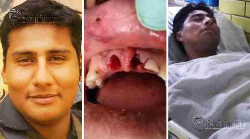 LA LIBERTAD | Director de colegio recibe brutal golpiza en el ande