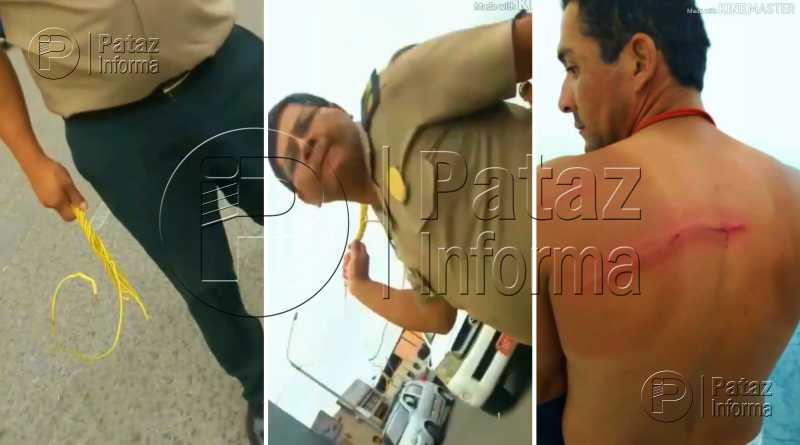 Policía agredió con un cable a joven limpiador de vehículos